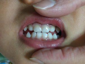 2歳の子供の虫歯疑惑